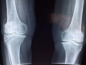 筋トレによる故障で整骨院に行くときは